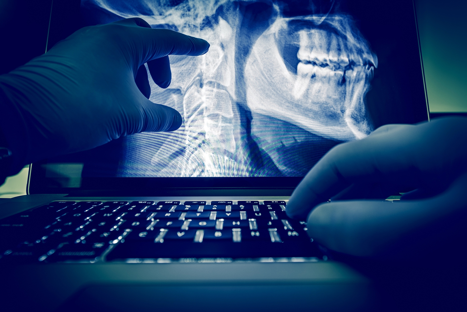X ray | Student World Online | Chiro